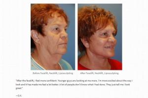 Facelift Necklift Testimonial