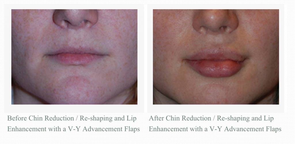 Transgender facial feminization with VY Advancement lip augmentation, and chin reduction