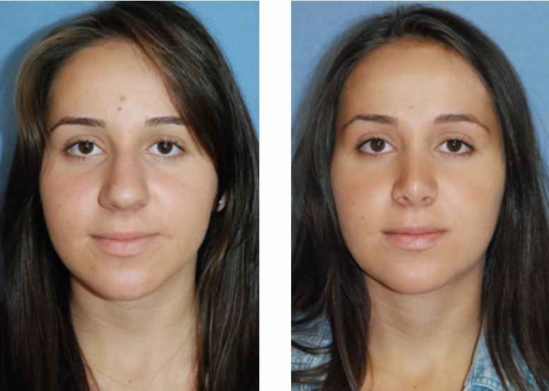 rhinoplasty-before-after-images