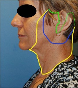 Facelift-figure-8-Different-Variations-of-the-Face-Lift-Dr-Young-Bellevue-Washington