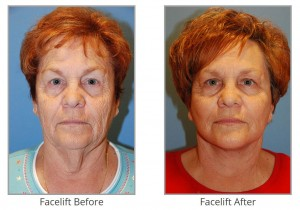 facelift-before-after-image
