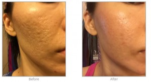 Acne Scar Treatment in Plastic Surgery for Acne Scarring, Microneedling & Radiofrequency #acnescartreatment #beforeandafter