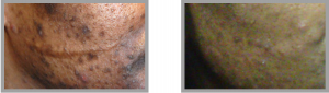 Dark skin acne topical skin care approach