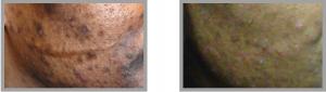 Dark skin acne topical skin care approach
