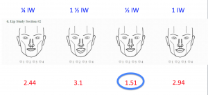 Line Drawings: Upper Lip was Found to Be Ideally 1/2 iris width in Height
