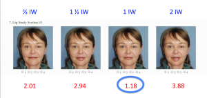 Morphed Actual Real Life Pictures: The Lower Lip is Ideally One Iris Width in Height