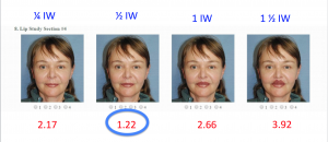 Morphed Real Life Pictures: Upper Lip was Found to Be Ideally 1/2 Iris Width in Height